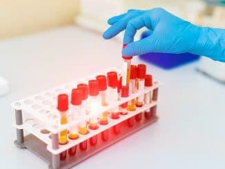 Infektionen bei Kindern – worauf weisen Blutwerte hin