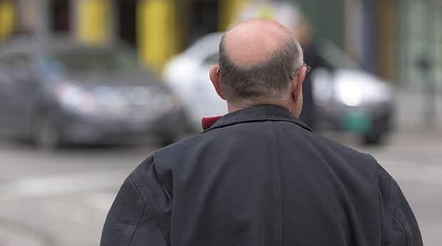 Glatze-Haare-Haarausfall