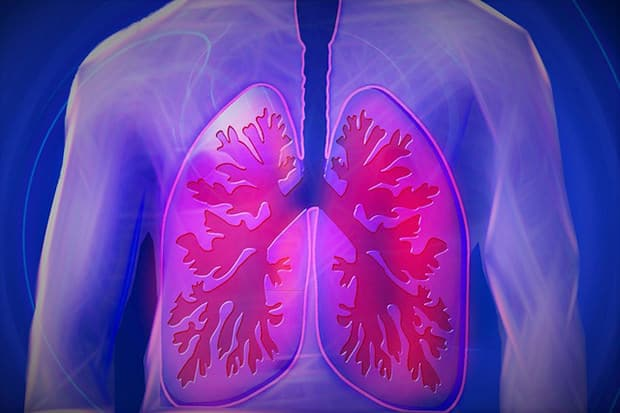 Lunge-Krankheit