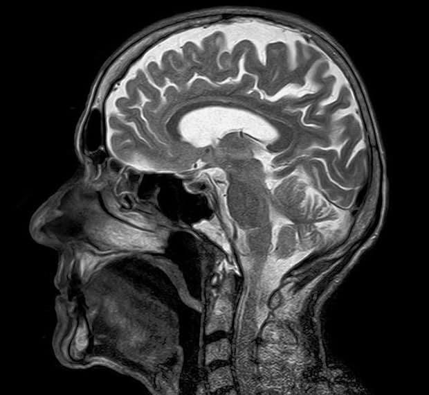 Landau-Kleffner-Syndrom-Gehirn