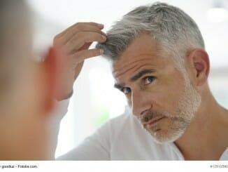 Haarausfall trifft Männer