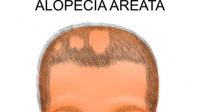 Kreisrunden Haarausfall: Alopecia areata