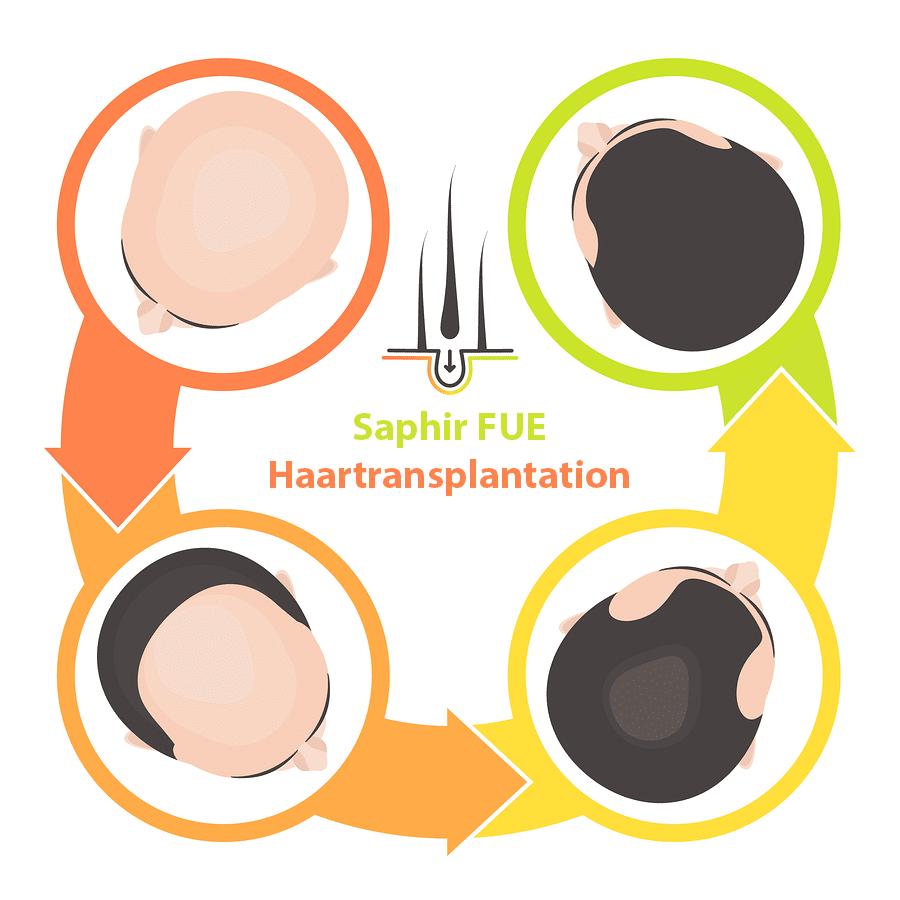 Saphire-FUE-Methode