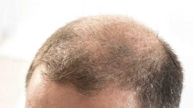 Erblich bedingter Haarausfall bei Männern