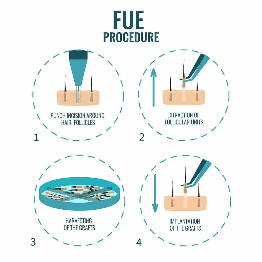 FUE Methode