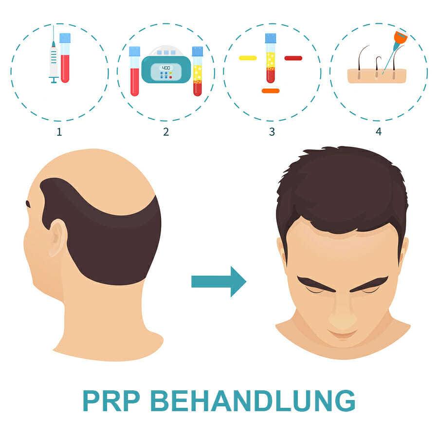 PRP Behandlung Ablauf