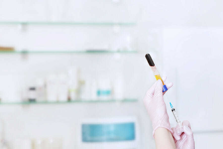 PRP Eigenbluttherapie gegen Haarverlust