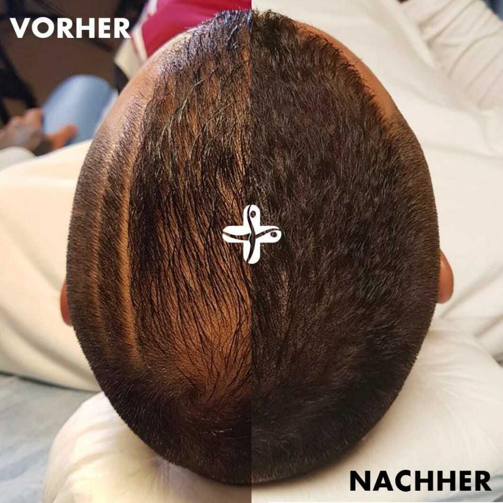 Ricardo Quaresma: Haarpigmentierung vorher/nachher vergleich