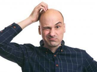Wie lange hält eine Haartransplantation?