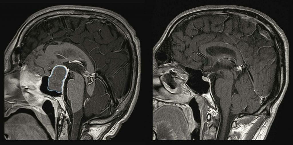 Gehirnscan eines an Akromegalie