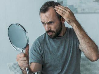 Anlagebedingter Haarausfall