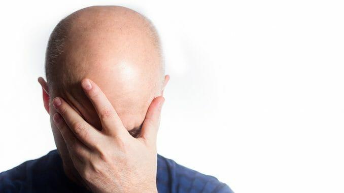 Fehlgeschlagene Haarverpflanzung