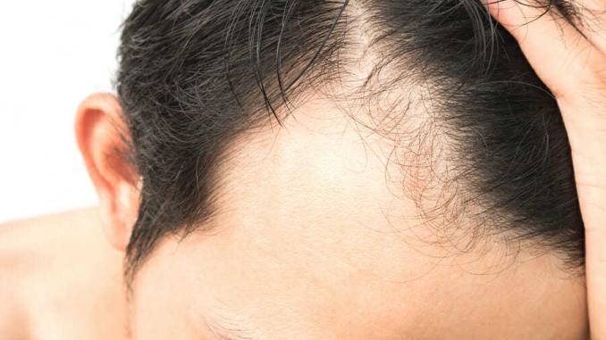 Haartransplantation Geheimratsecken ohne Rasur
