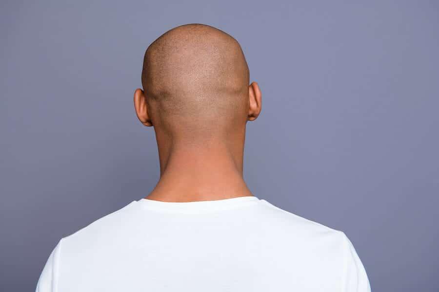 Softlasertherapie und Haartransplantation