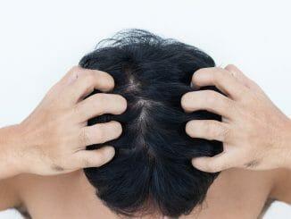 Trockene Kopfhaut und Haarausfall