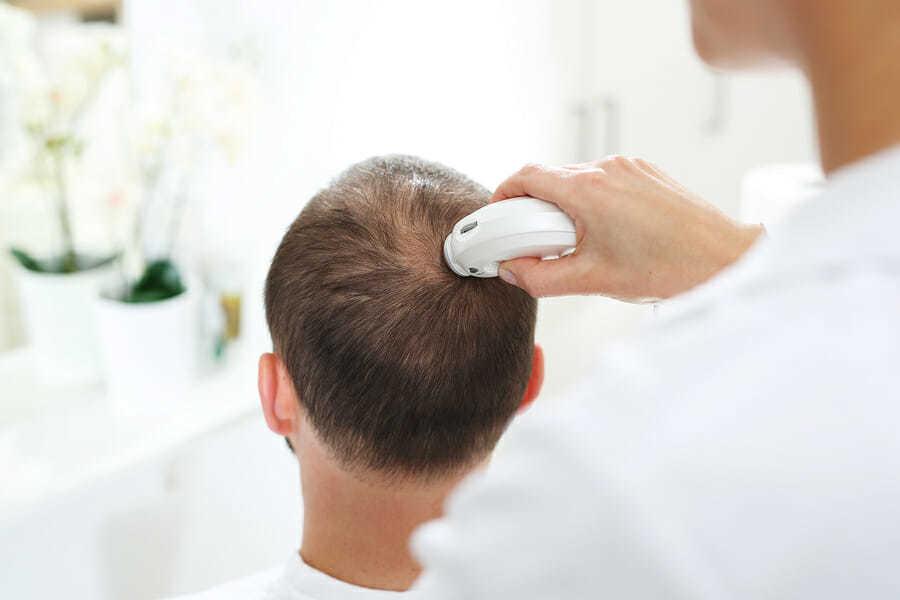 Vernarbender Haarausfall und die Behandlung