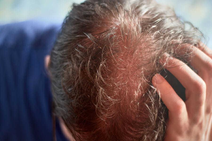 Vernarbender Haarausfall und die Formen