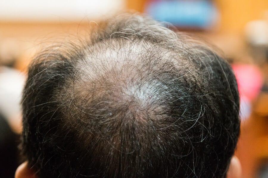 Tut beim bewegen haare weh kopfhaut Kopfhaut tut