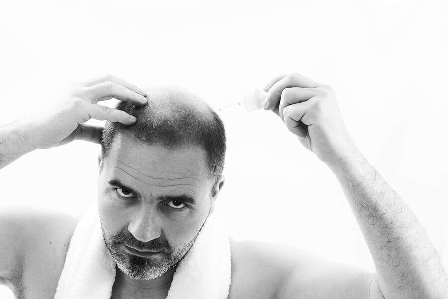 Alopecia universalis betroffenen