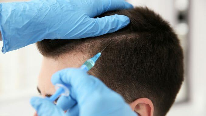 Haarausfall Spritzentherapie