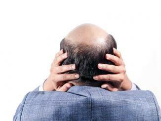 Haartransplantation Spenderbereich