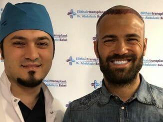 Haartransplantation in der Türkei : Vorher - Nachher