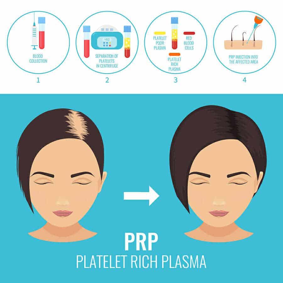 PRP-Behandlung als Spritzentherapie