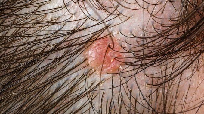 Pickel nach Haartransplantation