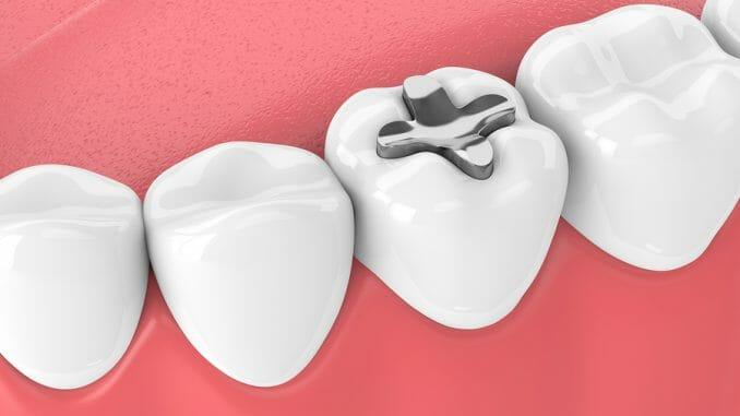 Füllungsmaterialien Zahnfüllungen