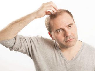 Pflanzliches Mittel gegen Haarausfall