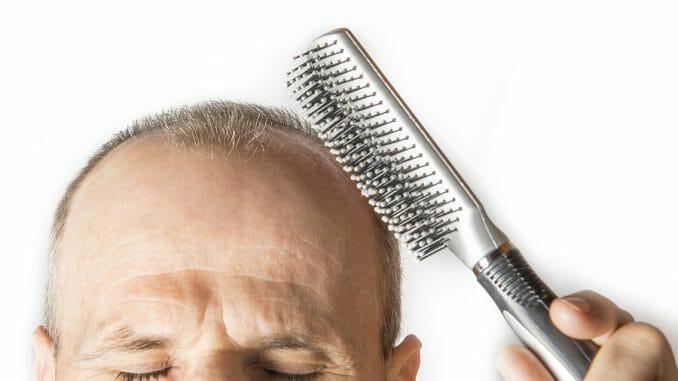 Haarausfall durch Diabetes mellitus