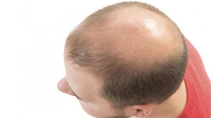 Haartransplantation mit 20
