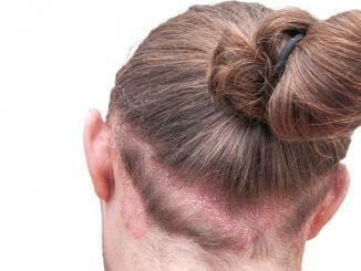 Kopfhaut Pilzinfektion und Haarausfall