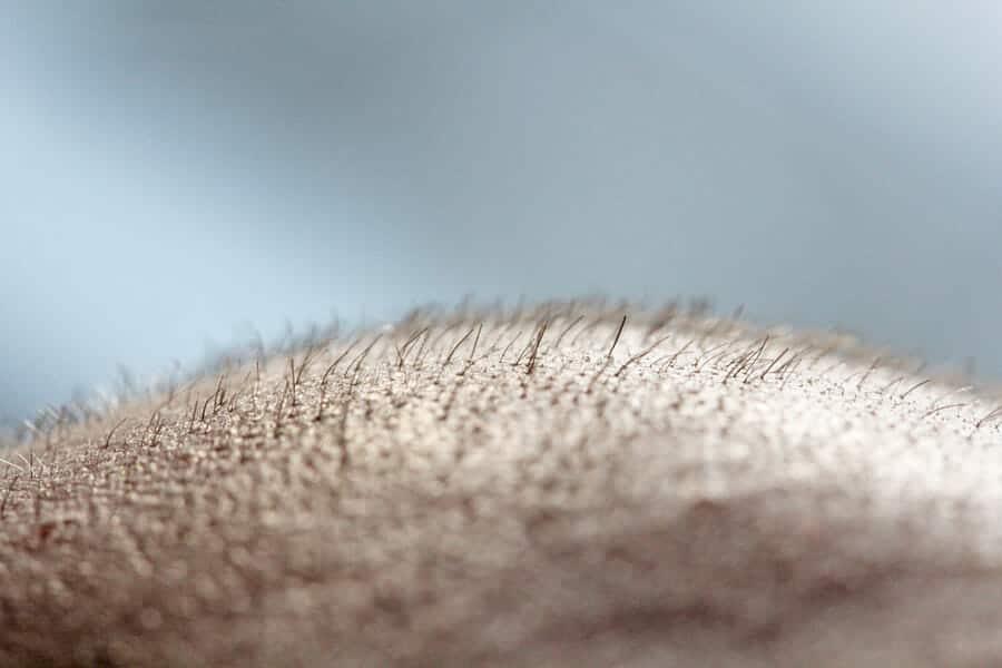Kopfhaut nach der FUE Haarverpflanzung