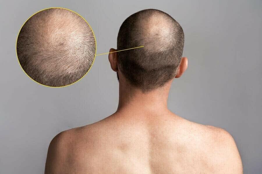 verschiedenen Arten von Haarausfall