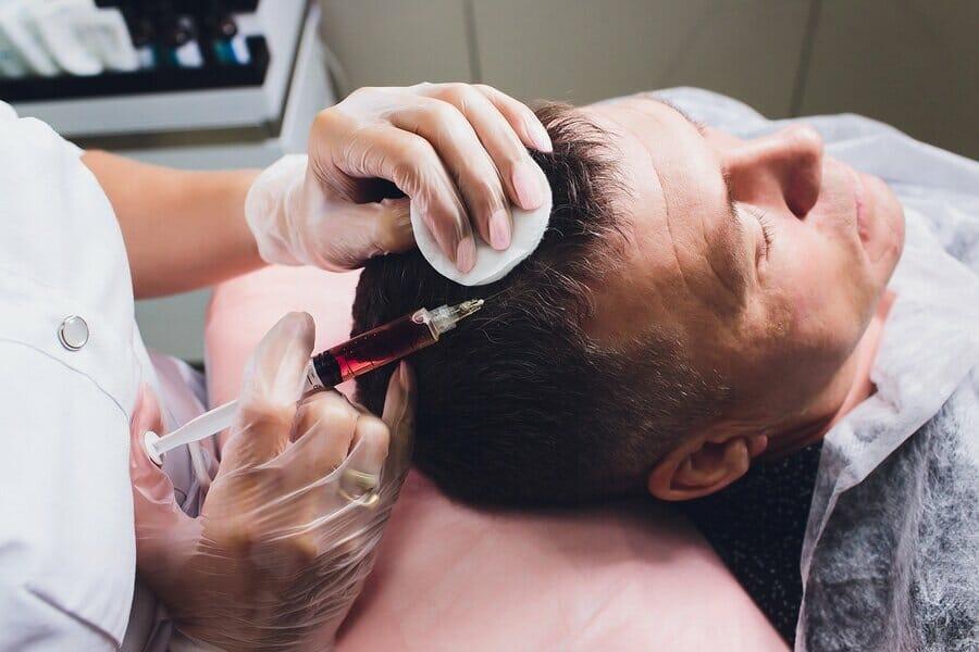 Haartransplantation Alternativen vergleichen