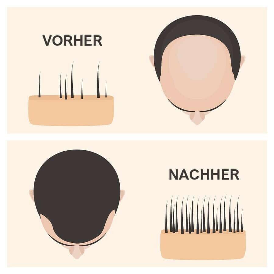 FUE Gold Haartransplantation Methode