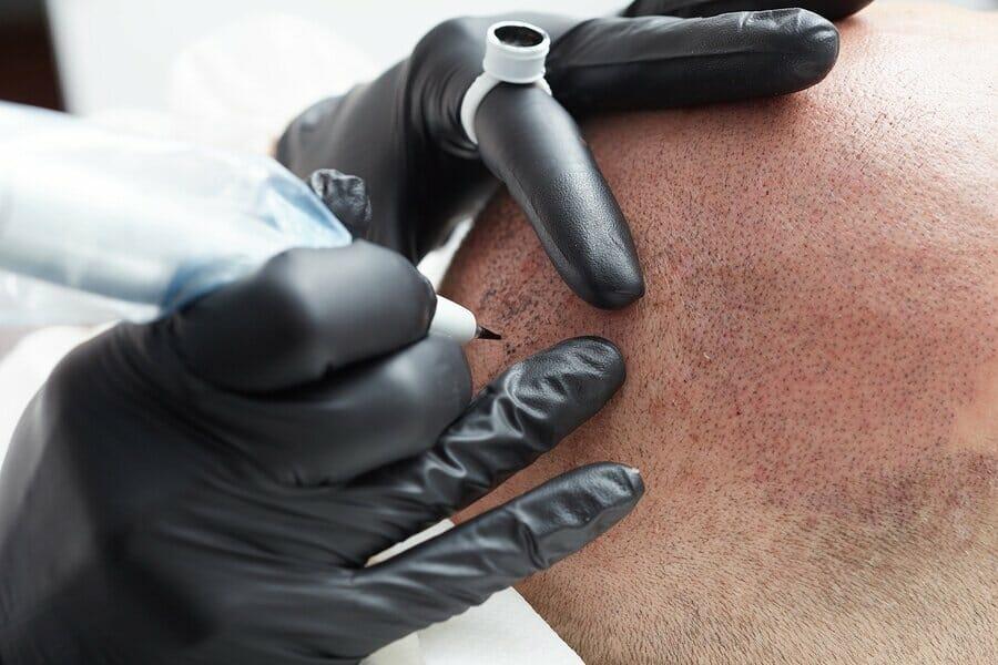 Nanohaarpigmentierung