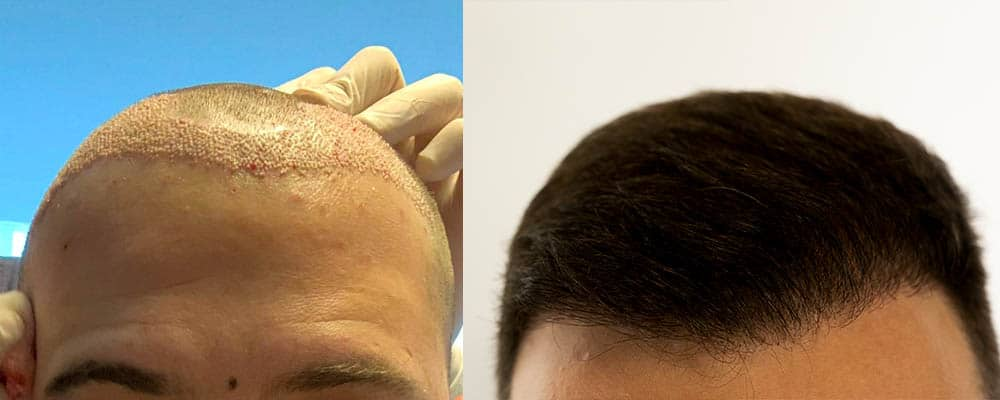 Haartransplantation Türkei Erfahrung