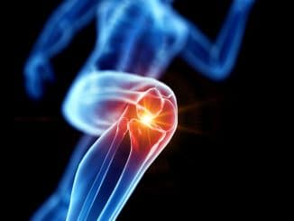 CBD-Öl bei Arthrose