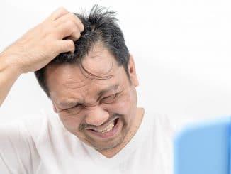Haarausfall und juckende Kopfhaut