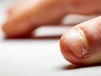 Nägelkauen - Onychophagie