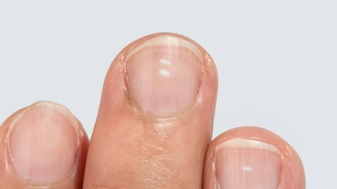 Längsrillen Fingernägel